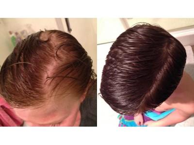 Количество и толщина волос